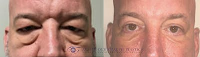 Accutite Facetite Morpheus Before and After Gallery - Patient 4698827 - Image 1