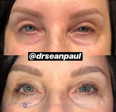Accutite Facetite Morpheus Before and After Gallery - Patient 4698828 - Image 1