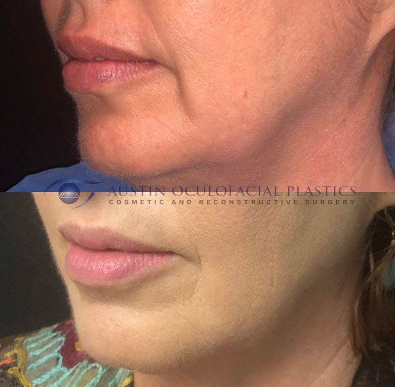Accutite Facetite Morpheus Before and After Gallery - Patient 4698829 - Image 1