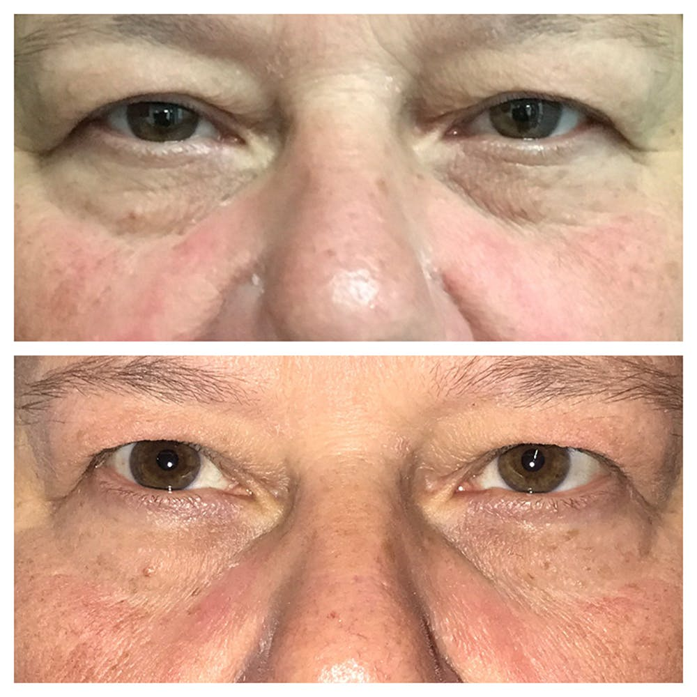 Lower Eyelid Surgery in Austin