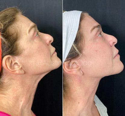 FaceTite™ Gallery - Patient 4815570 - Image 1