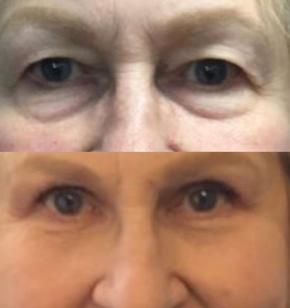 Upper Eyelid Surgery in Austin