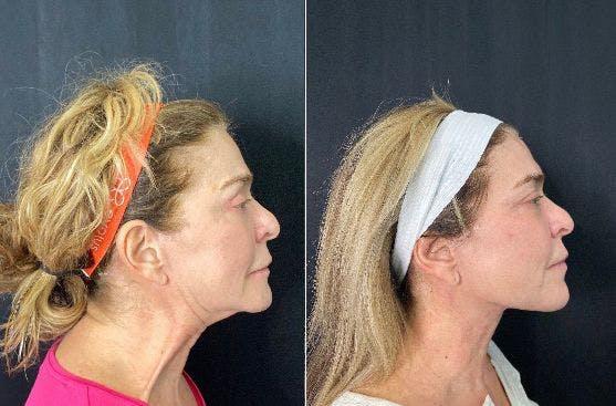 FaceTite™ Gallery - Patient 4815584 - Image 1