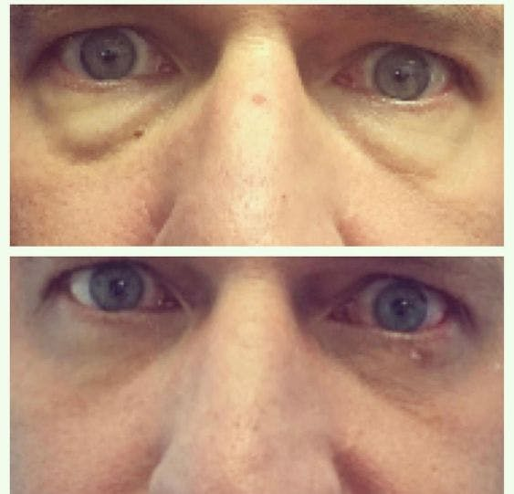 Lower Blepharoplasty Gallery - Patient 4815669 - Image 1