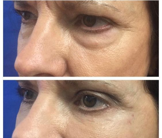 Internal Brow Lift Gallery - Patient 4815675 - Image 1