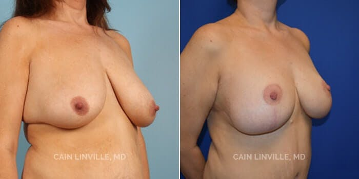 Breast Reduction Gallery - Patient 4819766 - Image 2
