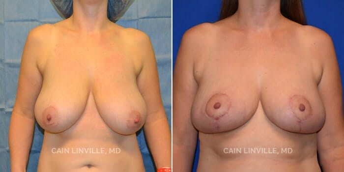 Breast Reduction Gallery - Patient 4819767 - Image 1