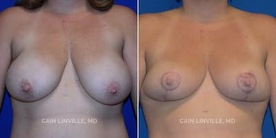 Breast Reduction Gallery - Patient 4819768 - Image 1