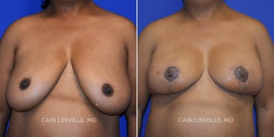 Breast Reduction Gallery - Patient 4819769 - Image 1