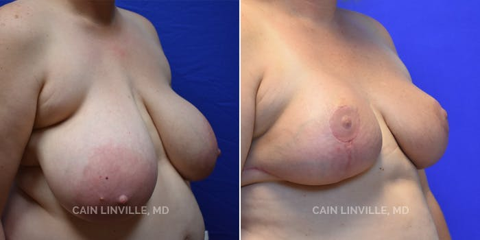 Breast Reduction Gallery - Patient 4819771 - Image 2