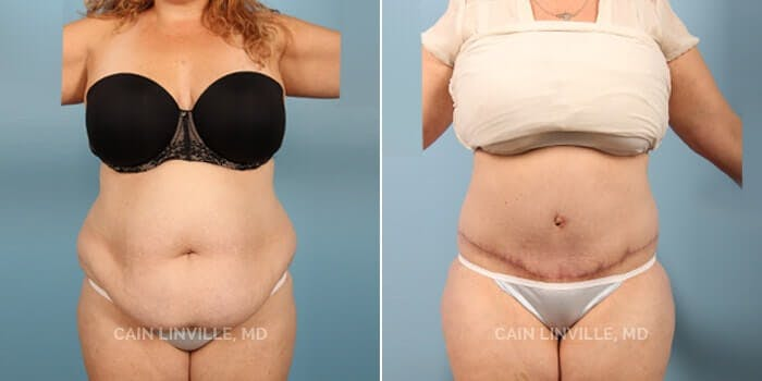 Tummy Tuck Gallery - Patient 4819786 - Image 1