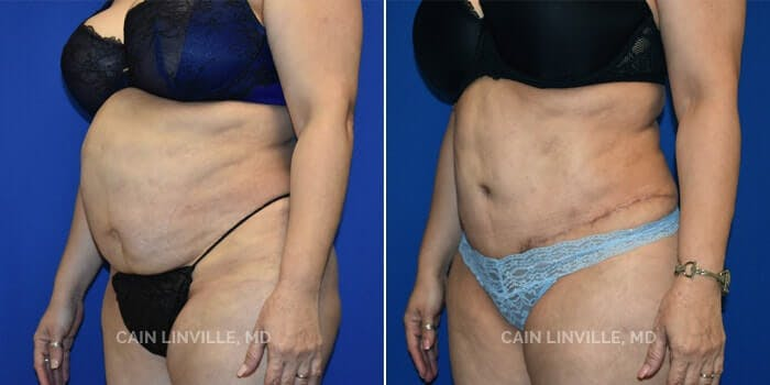 Tummy Tuck Gallery - Patient 4819788 - Image 2
