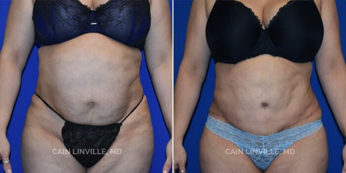 Tummy Tuck Gallery - Patient 4819788 - Image 1