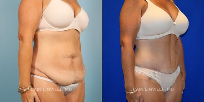 Tummy Tuck Gallery - Patient 4819789 - Image 2