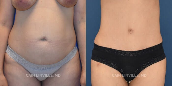 Tummy Tuck Gallery - Patient 4819790 - Image 1