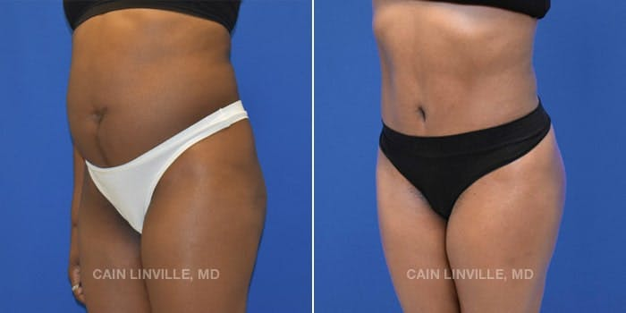 Tummy Tuck Gallery - Patient 4819792 - Image 2