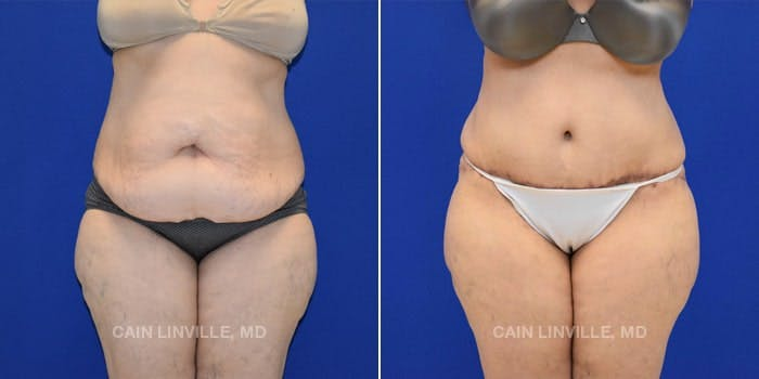 Tummy Tuck Gallery - Patient 4819794 - Image 1