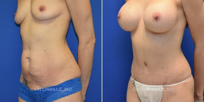Tummy Tuck Gallery - Patient 4819795 - Image 2