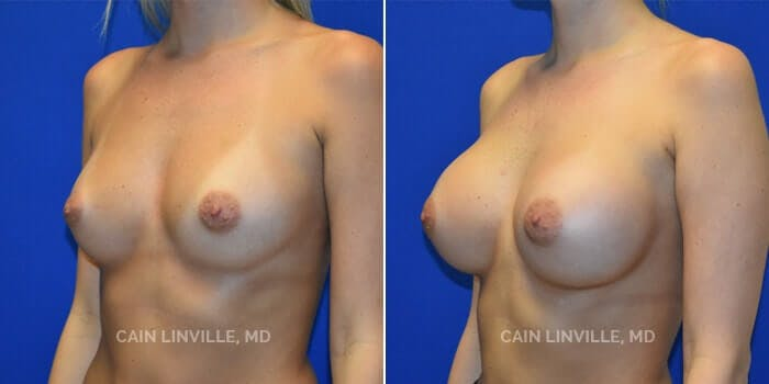 Breast Augmentation Gallery - Patient 4819847 - Image 2