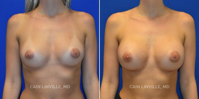 Breast Augmentation Gallery - Patient 4819847 - Image 1