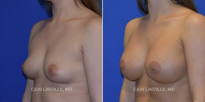 Breast Augmentation Gallery - Patient 4819848 - Image 2