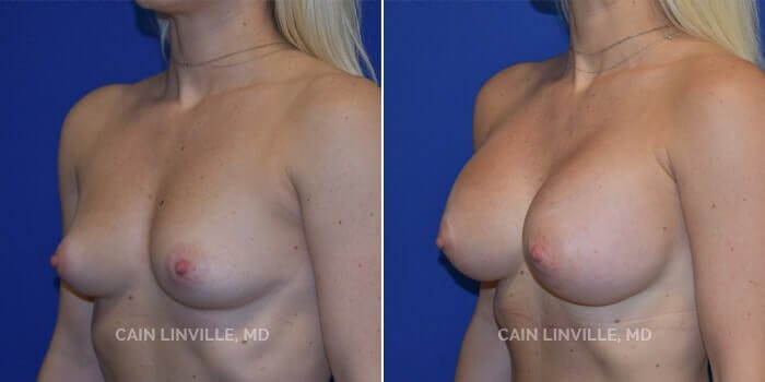 Breast Augmentation Gallery - Patient 4819850 - Image 2