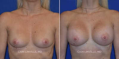 Breast Augmentation Gallery - Patient 4819850 - Image 1