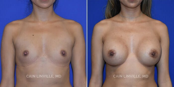 Breast Augmentation Gallery - Patient 4819851 - Image 1