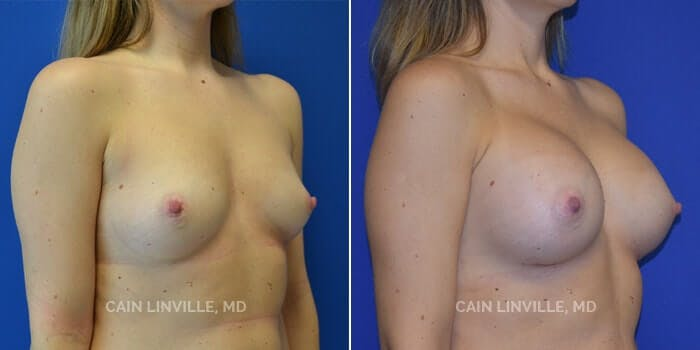 Breast Augmentation Gallery - Patient 4819853 - Image 2