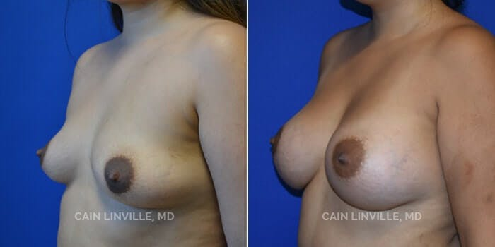 Breast Augmentation Gallery - Patient 4819854 - Image 2