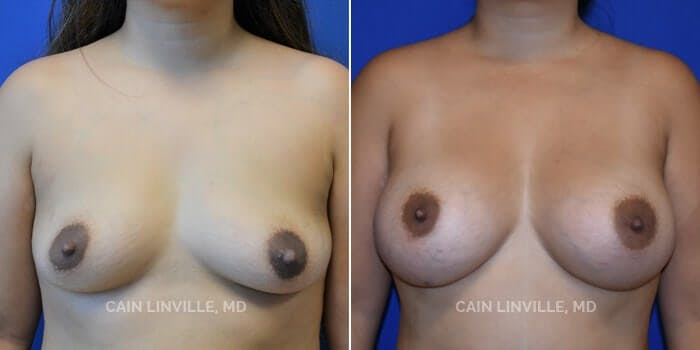 Breast Augmentation Gallery - Patient 4819854 - Image 1