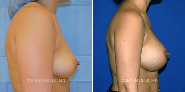 Breast Augmentation Gallery - Patient 4819855 - Image 2