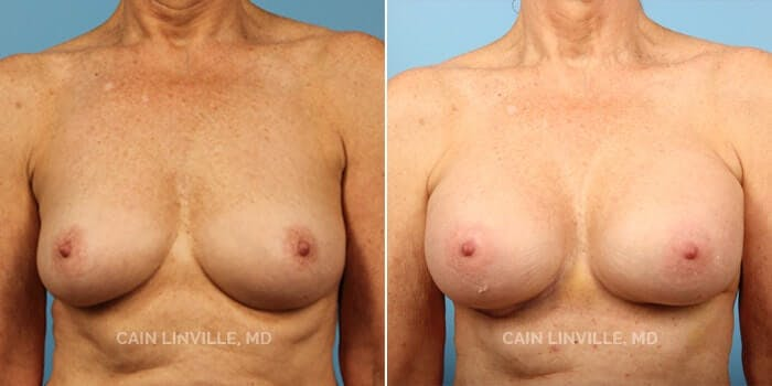 Breast Augmentation Gallery - Patient 4819856 - Image 1