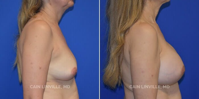 Breast Augmentation Gallery - Patient 4819869 - Image 2