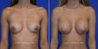 Breast Augmentation Gallery - Patient 4819870 - Image 1