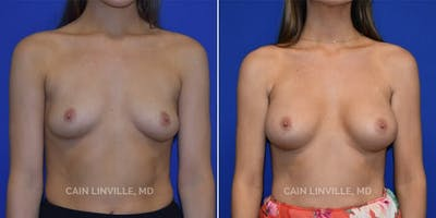 Breast Augmentation Gallery - Patient 4819924 - Image 1