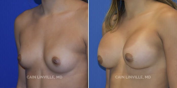 Breast Augmentation Gallery - Patient 4819925 - Image 2