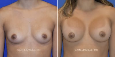 Breast Augmentation Gallery - Patient 4819925 - Image 1