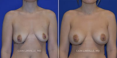 Breast Augmentation Gallery - Patient 4819926 - Image 1