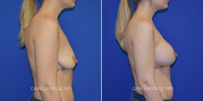 Breast Augmentation Gallery - Patient 4819926 - Image 2