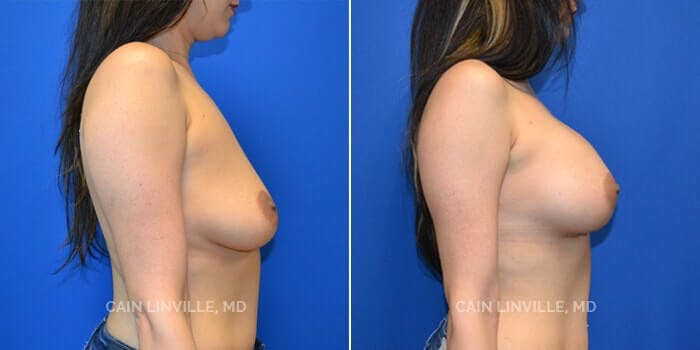 Breast Augmentation Gallery - Patient 4819927 - Image 2