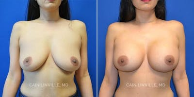 Breast Augmentation Gallery - Patient 4819927 - Image 1