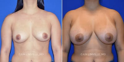 Breast Augmentation Gallery - Patient 4819928 - Image 1