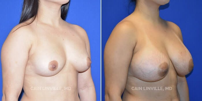 Breast Augmentation Gallery - Patient 4819928 - Image 2