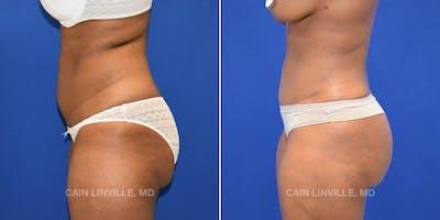 BodyTite™ Gallery - Patient 4819944 - Image 1