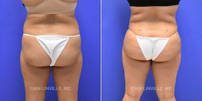 Brazilian Butt Lift Gallery - Patient 4819946 - Image 1