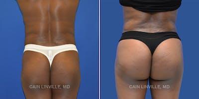 Brazilian Butt Lift Gallery - Patient 4819947 - Image 1