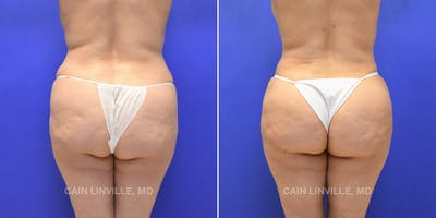 Brazilian Butt Lift Gallery - Patient 4819949 - Image 1