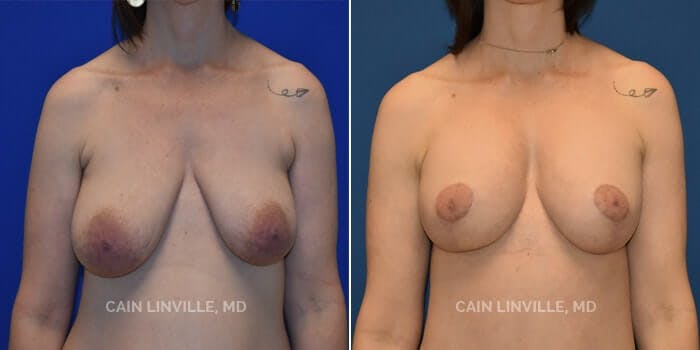 Breast Augmentation with Lift Gallery - Patient 4819972 - Image 1