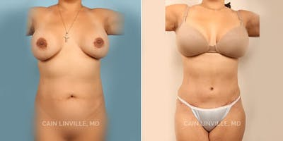 Liposuction Abdominoplasty Gallery - Patient 4819996 - Image 1